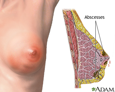 Breast infection: MedlinePlus Medical Encyclopedia Image