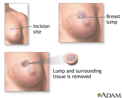 Lumpectomy