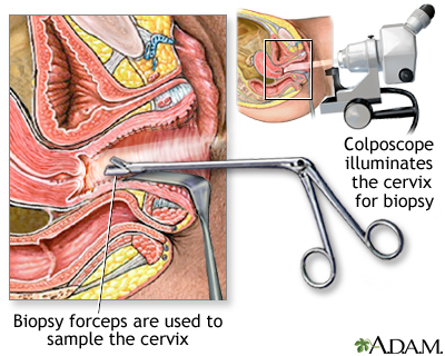 Colposcopy-directed biopsy: MedlinePlus Medical Encyclopedia Image