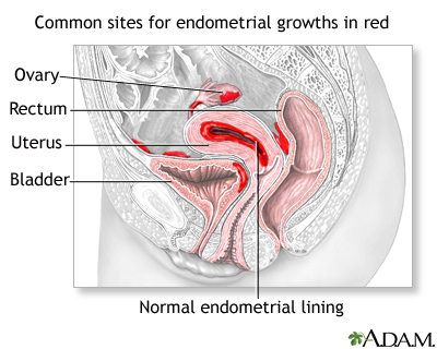 Endometriosis: MedlinePlus Medical Encyclopedia Image