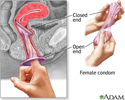 Female on The Female Condom Like The Male Condom Is A Barrier Contraceptive Made