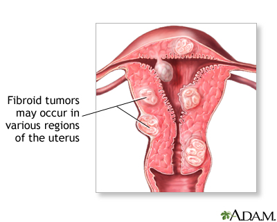 Fibroid tumors