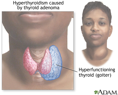Hyperthyroidism hyperthyroidism: medlineplus medical encyclopedia