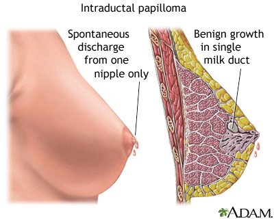Intraductal papilloma