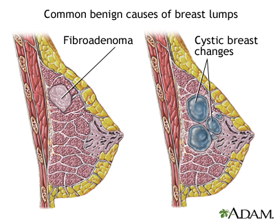 Breast lumps and cysts