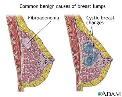 Causes of Breast Lumps
