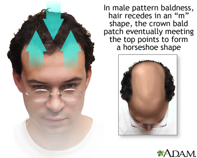 Male pattern baldness: MedlinePlus Medical Encyclopedia