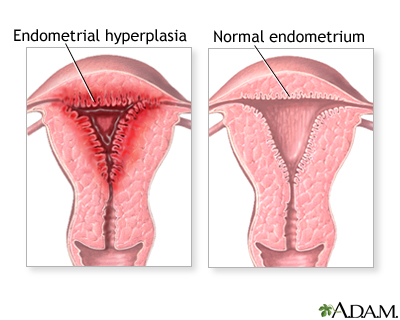 Abnormal menstrual periods: MedlinePlus Medical Encyclopedia Image