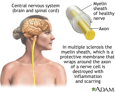 Demyelinated Nerve in Multiple Sclerosis