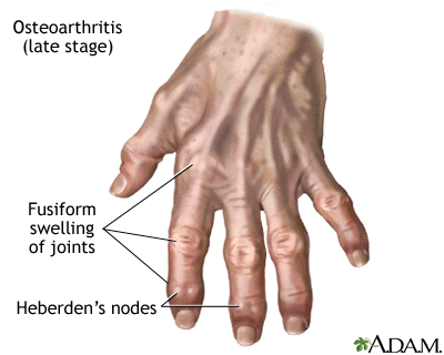 osteoarthritis: medlineplus medical encyclopedia, Skeleton