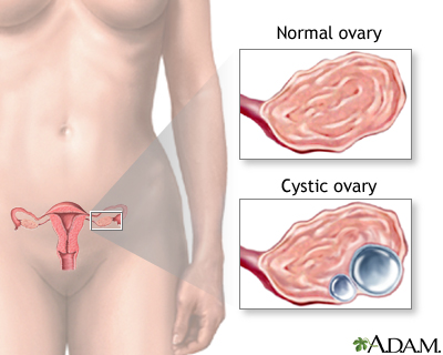 Ovarian cysts: MedlinePlus Medical Encyclopedia Image