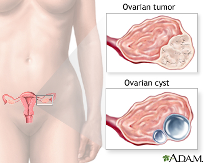 Ovarian growth worries: MedlinePlus Medical Encyclopedia Image