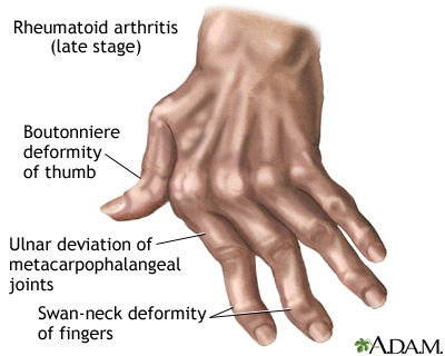 Rheumatoid Arthritis Medlineplus Medical Encyclopedia