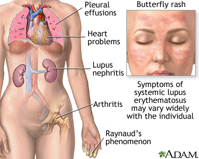 systemic lupus erythematosus: medlineplus medical encyclopedia, Skeleton