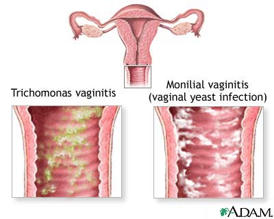 Causes of vaginal itching: MedlinePlus Medical Encyclopedia Image