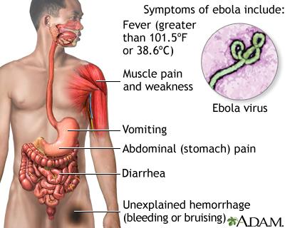Ebola virus: MedlinePlus Medical Encyclopedia Image