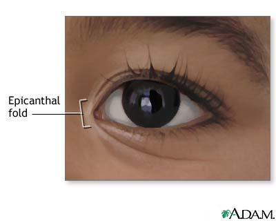 Epicanthal fold: MedlinePlus Medical Encyclopedia Image