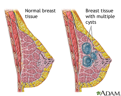 fibrocystic breast disease: medlineplus medical encyclopedia image, Skeleton