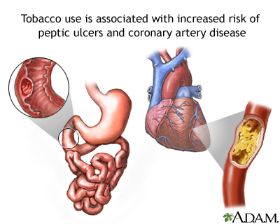 Tobacco and vascular disease