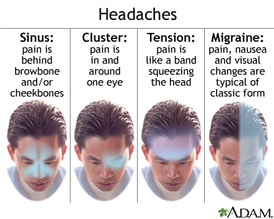 tension headache: medlineplus medical encyclopedia, Skeleton