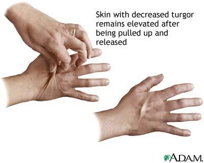 Skin turgor