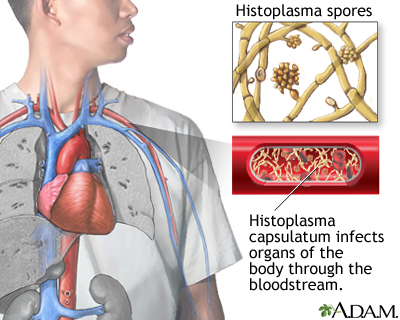 Disseminated histoplasmosis