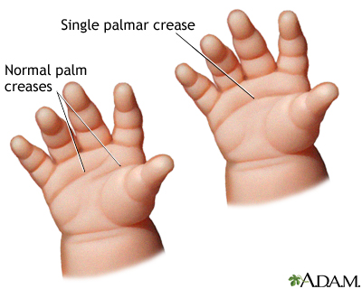 Single palmar crease
