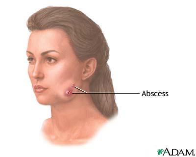 Actinomycosis (lumpy jaw): MedlinePlus Medical Encyclopedia Image