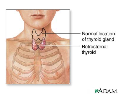 Retrosternal thyroid