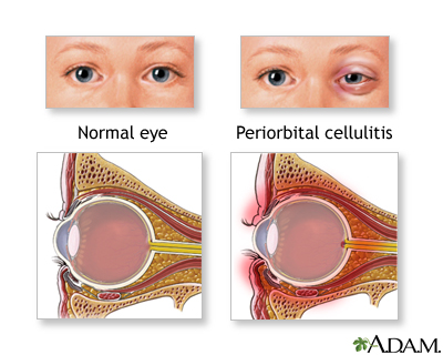 Periorbital cellulitis is an acute infection of the tissues ...
