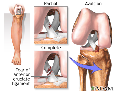 2db57fdb94 Anterior cruciate ligament (ACL) injury: MedlinePlus Medical ...