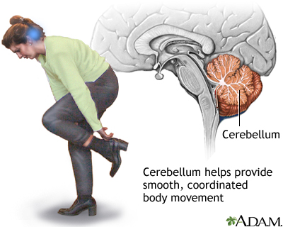 cerebellum - function: medlineplus medical encyclopedia image, Cephalic vein