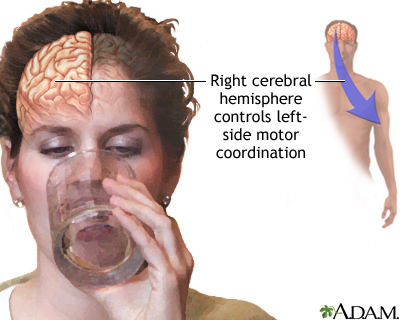 Right cerebral hemisphere - function