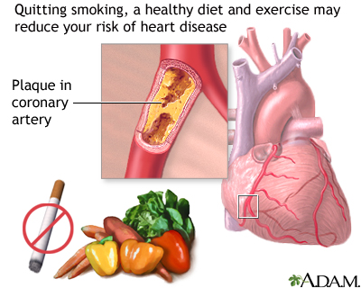 Heart disease may be prevented by recommended healthy diet, regular exercise and to stop smoking if you are a smoker. Follow your health care provider's recommendations for treatment and prevention of heart disease.