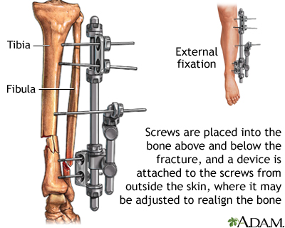 External fixation device: MedlinePlus Medical Encyclopedia Image