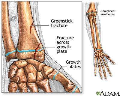 Fractures across a growth plate: MedlinePlus Medical Encyclopedia Image