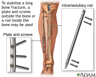 Internal fixation devices