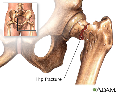 Hip fracture: MedlinePlus Medical Encyclopedia Image