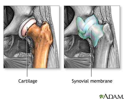 Osteoartritis contra artritis reumatoide