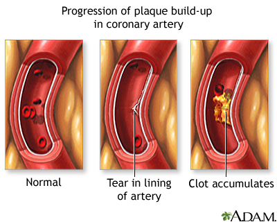 Plaque build-up