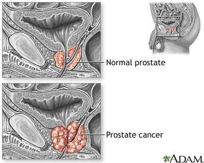 Prostate Cancer Medlineplus Medical Encyclopedia