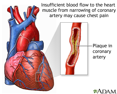 Angina is a specific type of pain in the chest caused by inadequate blood flow through the blood vessels (coronary vessels) of the heart muscle (myocardium).