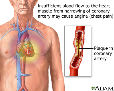 Stable angina: MedlinePlus Medical Encyclopedia