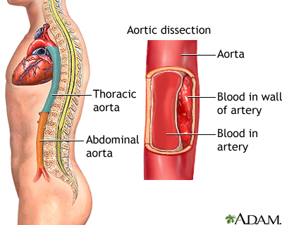 Aortic dissection: MedlinePlus Medical Encyclopedia