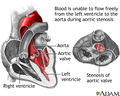 Aortic stenosis is a heart valve disorder that narrows or obstructs the aortic valve opening. Narrowing of the aortic valve prevents the valve from opening properly and obstructs the flow of blood from the left ventricle to the aorta. This can reduce the amount of blood that flows forward to the body.