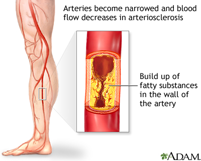 Peripheral Artery Disease Legs Medlineplus Medical Encyclopedia