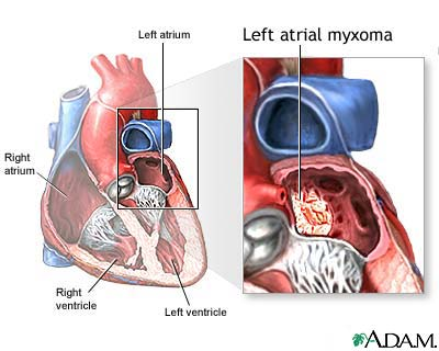 left atrial myxoma: medlineplus medical encyclopedia image, Human Body