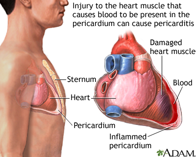 Post-MI pericarditis is inflammation of the pericardium (the sac-like covering of the heart). Any previous injury to the heart muscle can cause pericarditis. Incidences of pericarditis are associated with Dressler's syndrome, after a heart attack, open heart surgery, and may also follow stab wounds to the heart or blunt chest trauma. Pain occurs when the inflamed pericardium rubs on the heart.