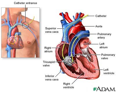 Swan-Ganz - right heart catheterization: MedlinePlus Medical
