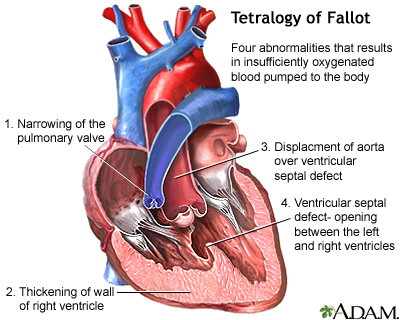 Cyanotic Heart Disease Medlineplus Medical Encyclopedia